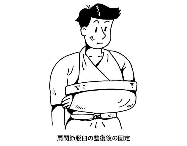 肩関節脱臼の整復後の固定