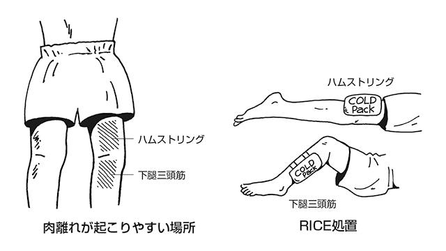 肉離れが起こりやすい場所とRICE処置