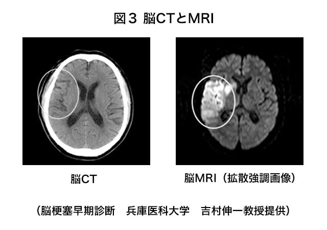 脳CTとMRI