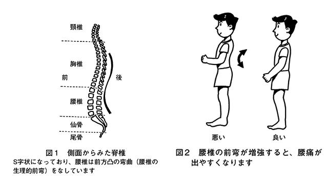 図1側面からみた脊椎・図2腰椎の前弯が増強すると、腰痛が出やすくなります