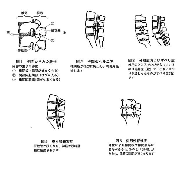 腰痛の分類・症状_図1〜図5